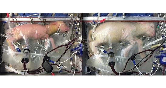 042517_TI_artificial-womb_main.jpg