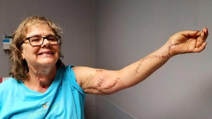 Elise-Wilson-wounds-850x478$large.jpg
